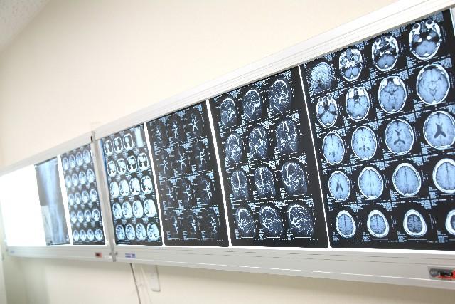 脳CTスキャン